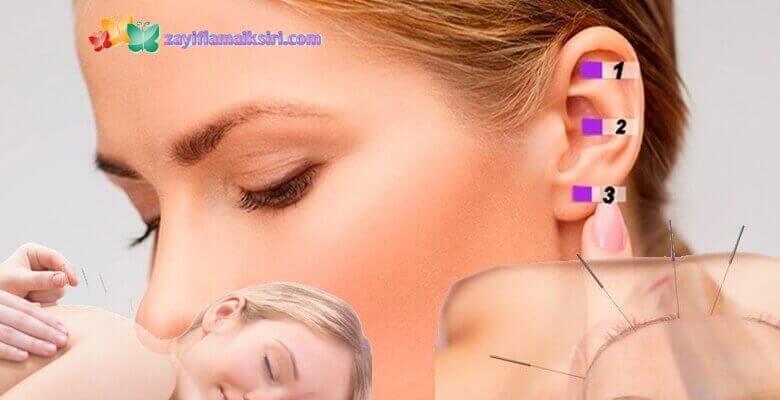 Akupunktur ile 19 Kilo Veren Hazan Hanım'ın Hikayesi